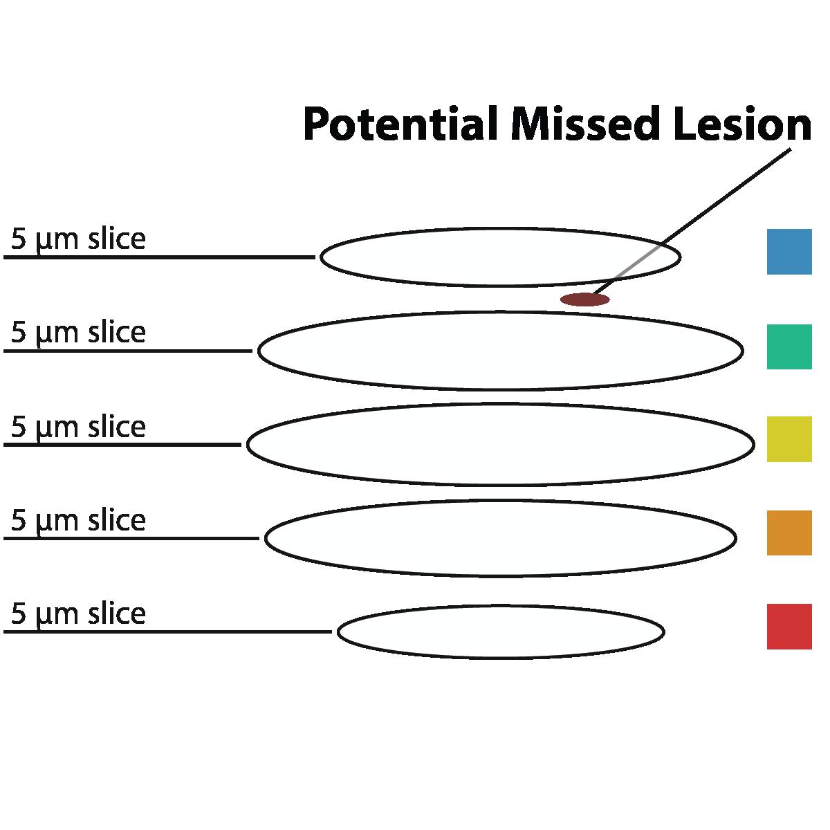 2d FFPE Comparison 5 micron sections miss data