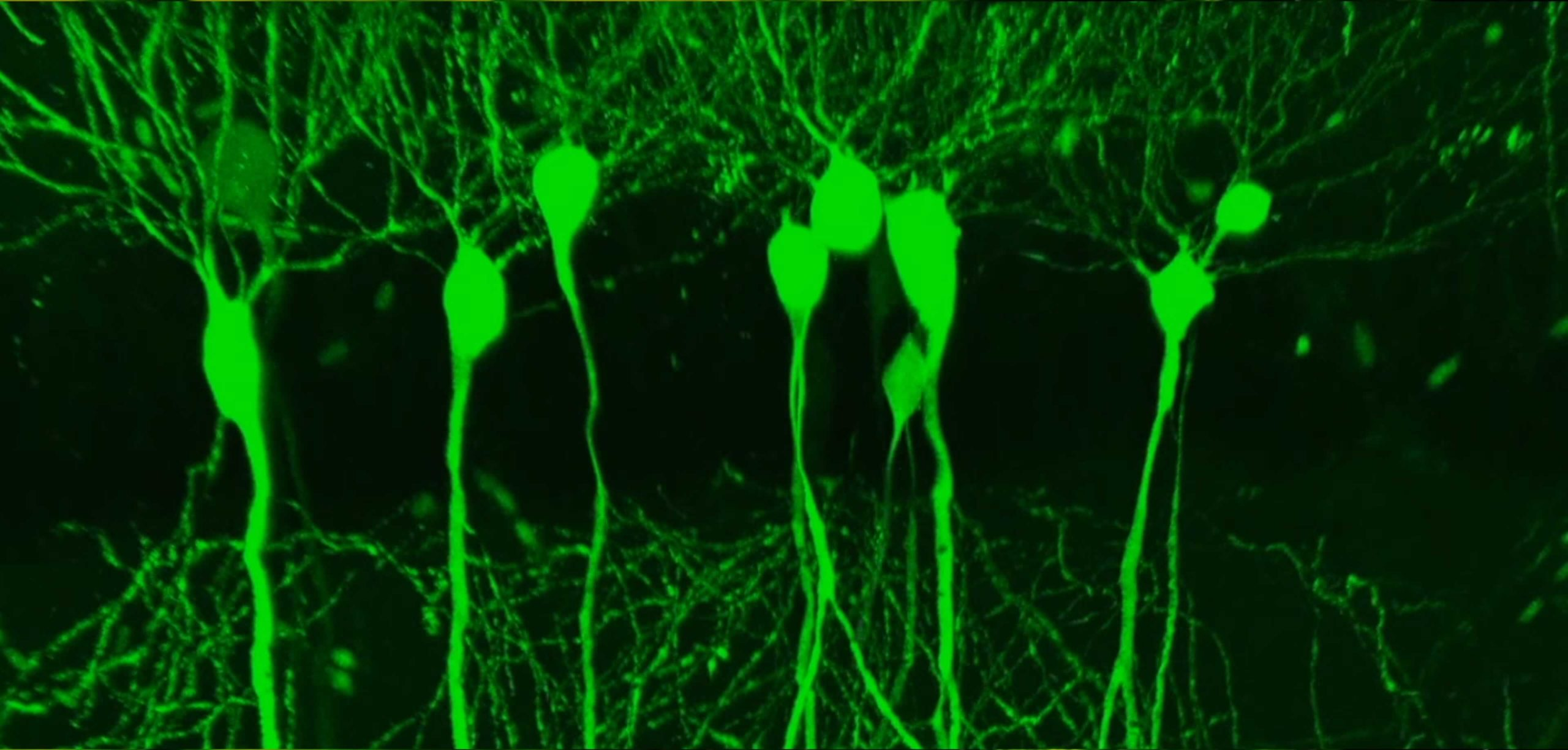 Subcellular Brain Tissue Imaging - Single Neurons