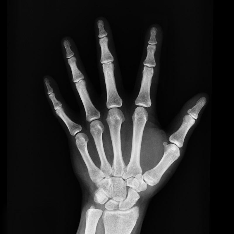 X-Ray images penetrate tissue to allow imaging.